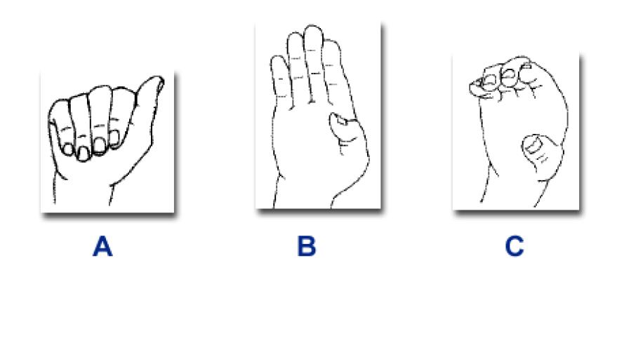 ProQuest Document View - Hand gesture recognition using Kinect